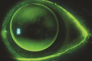 Figure 1: A spherical RGP on a toric cornea