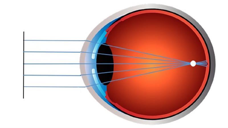 amblyopia fokozott látás látásvizsgálati arány