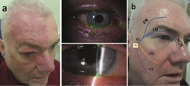 Shingles and other viral issues - Optician