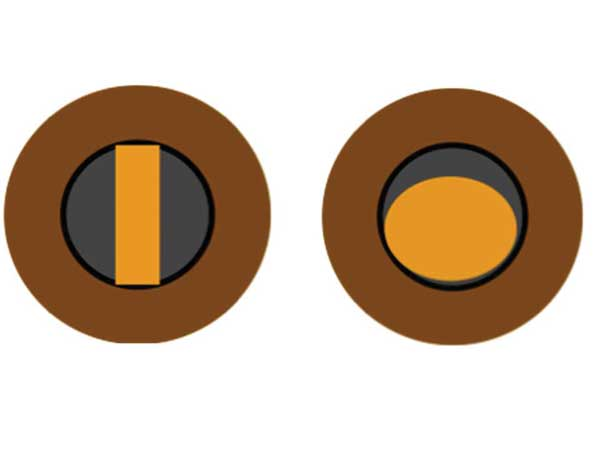 Figure 1: Reflex from a streak (left) or spot (right) retinoscope