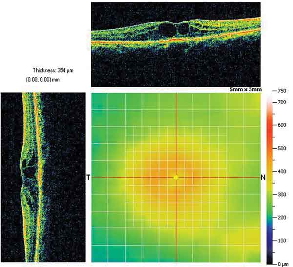Figure 2: Cystoid changes around the macula seen on OCT