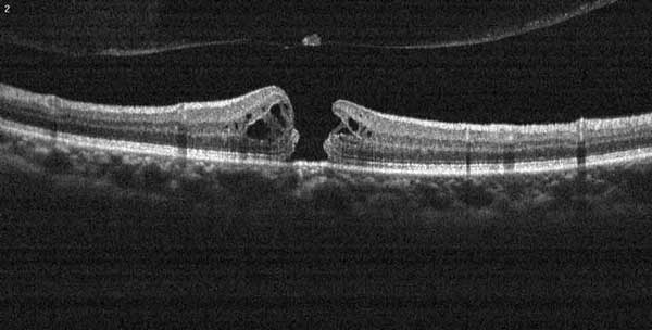 Figure 4: OCT cross-section of a macular hole