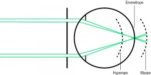 Figure 1 Principle of Scheiner's disc. If two separate images are focused on the plane of the emmetropic retina, then the two light pencils will remain uncrossed upon the hyperopic retina while crossed when reaching the myopic retina