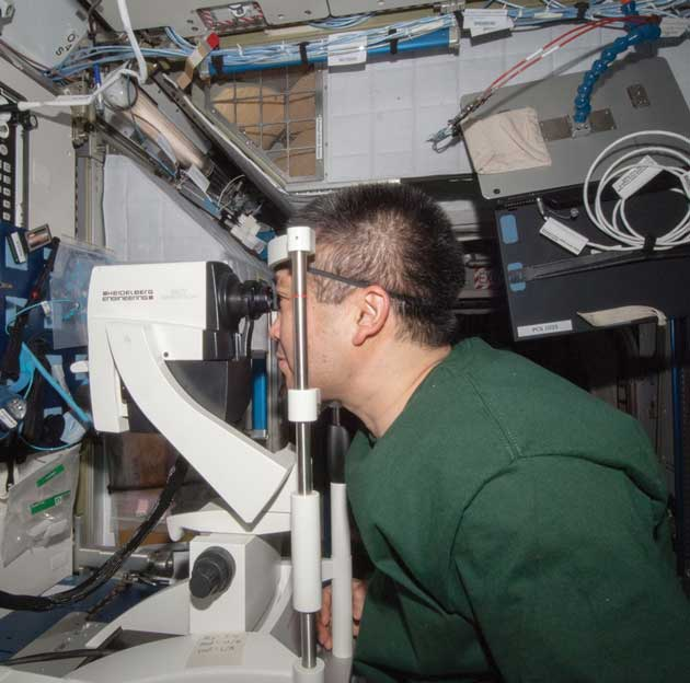 Astronauts use OCT to monitor eyes in space - Optician