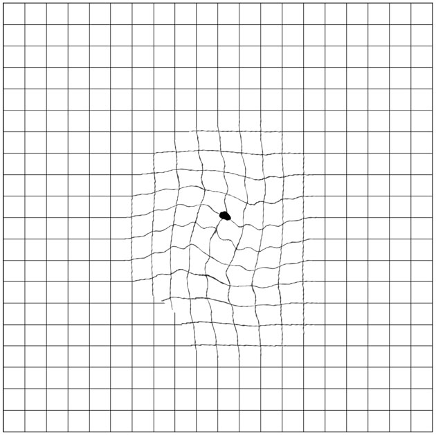 Figure 3: Metamorphosia