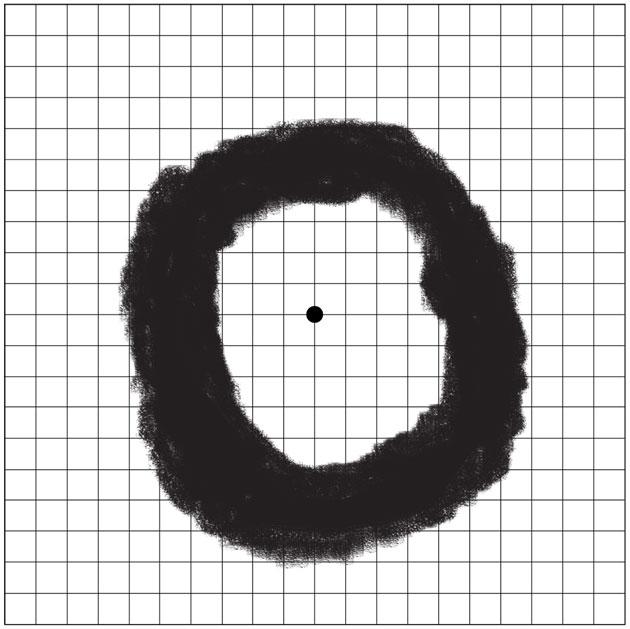Figure 2: Ring Scotoma