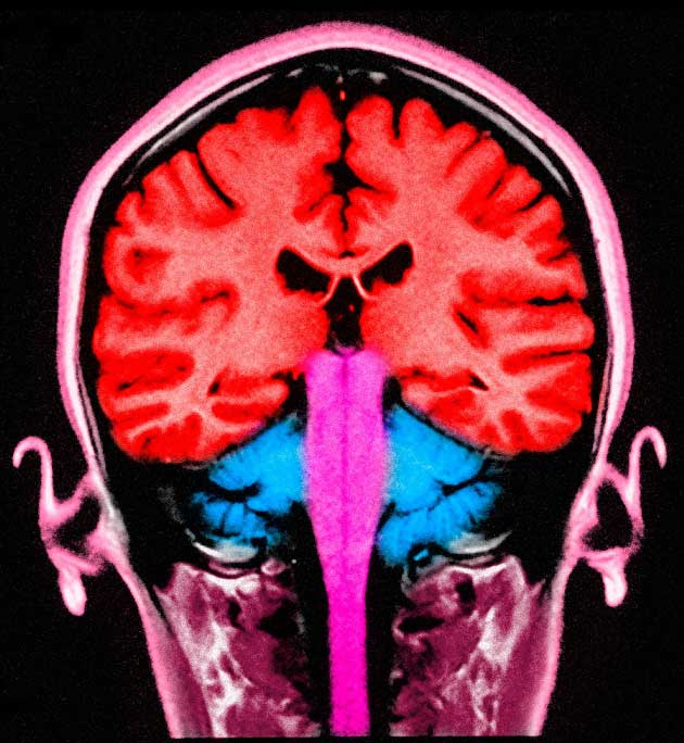 MRI brain scan: imperfect processing of visual images in the autistic individual can lead to distress and anxiety