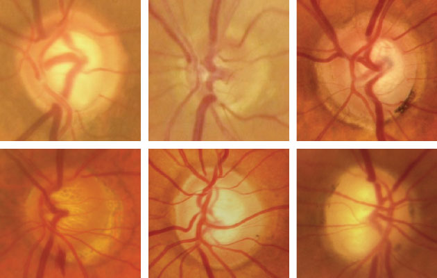 Figure 1: Characteristic appearances of glaucomatous optic neuropathy