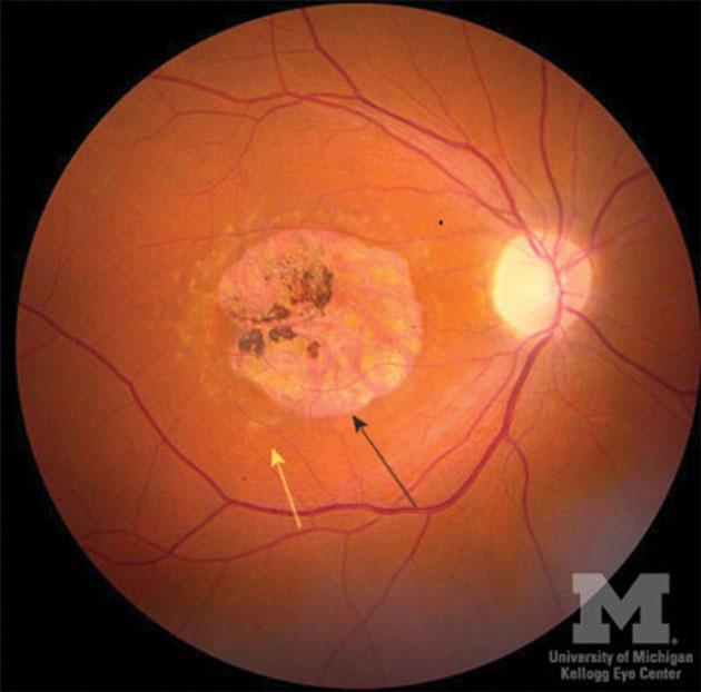 Figure-1.-Stargardt's-disease-OD