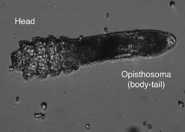 Figure 2: Anatomy of a Demodex mite