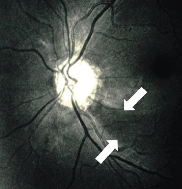 Figure 2: An inferior-temporal RNFL defect in the left eye visible by red-free illumination. The defect is indicated between the white arrows. Note, in contrast, the visibility of the normal RNFL entering the superior pole of the nerve head