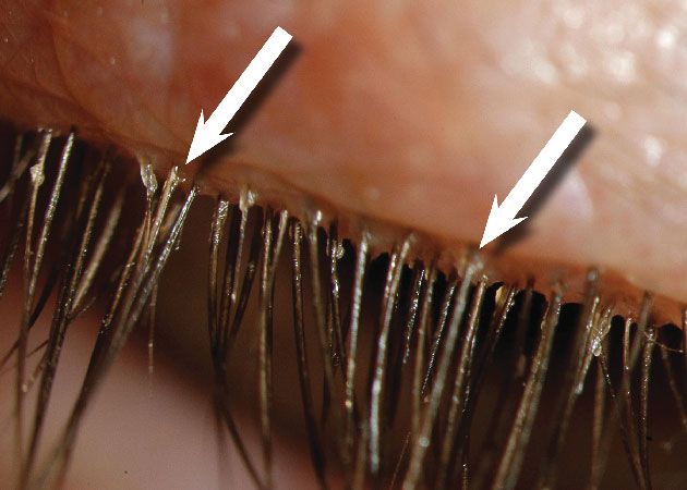 Figure-3-(CD-at-the-base-of-lashes)