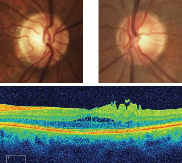Figure 7a: The optic nerve head images and OCT B scan for a patient under review for ocular hypertension