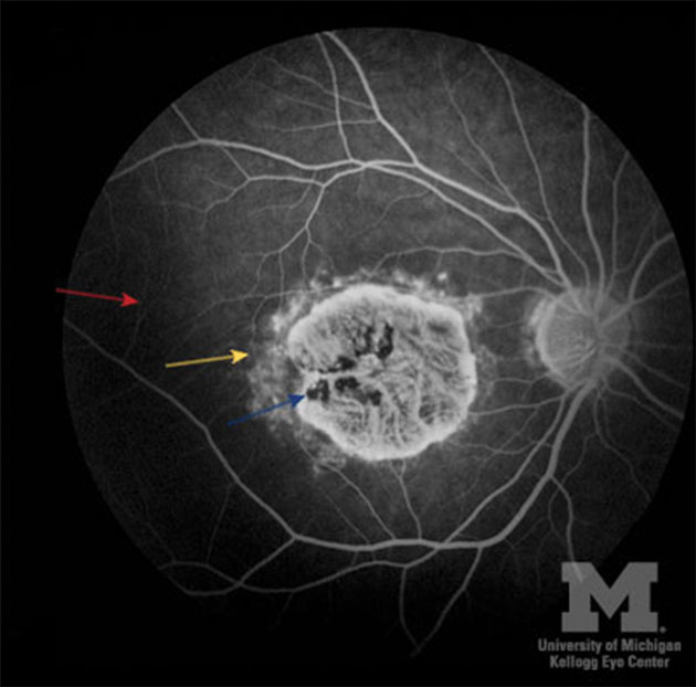 Figure 2: Fluoroscein angiography of Stargardt disease.12 Red arrow: Dark choroid due to blockage by lipofuscin. Yellow arrow: hyperfluorescent flecks due to RPE atrophy. Blue arrow: window defect due to RPE and choroidal atrophy