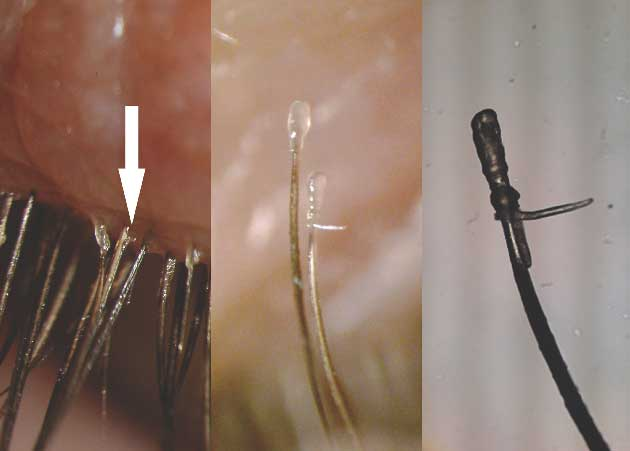 Figure 4: Demodex mite observed on epilated lash with CD