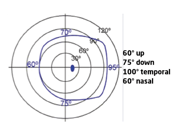 Figure 1 The normal monocular static visual field for a right eye