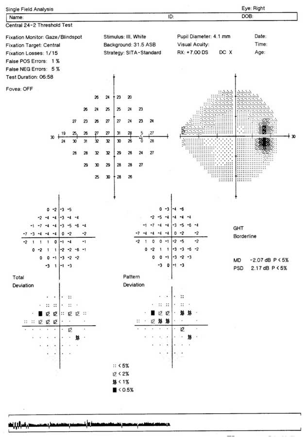 Figure 10: Single field printout of the visual field recorded with the SITA Standard algorithm and Program 24-2 of the HFA for the right eye of a patient with glaucoma. The paracentral/early arcuate defect present in the Pattern Deviation probability map is not evident in the grey scale or in the output of the Glaucoma Hemifield Test. Age-corrected suprathreshold perimetry with the HFA, at least, would not detect the presence of the field loss