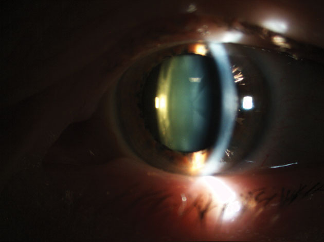 ed6d07f9c2 Figure 1  Mixed cataract. Age-related cataract may affect the lens nucleus