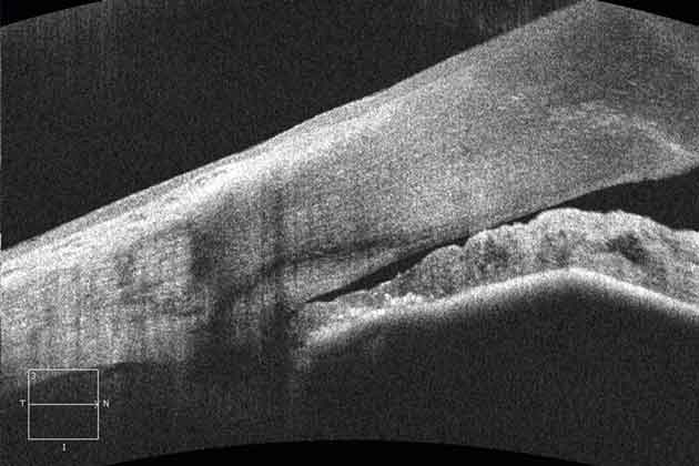 Figure 17: The Cirrus HD-OCT 500 image of the anterior chamber of a patient with a narrow angle