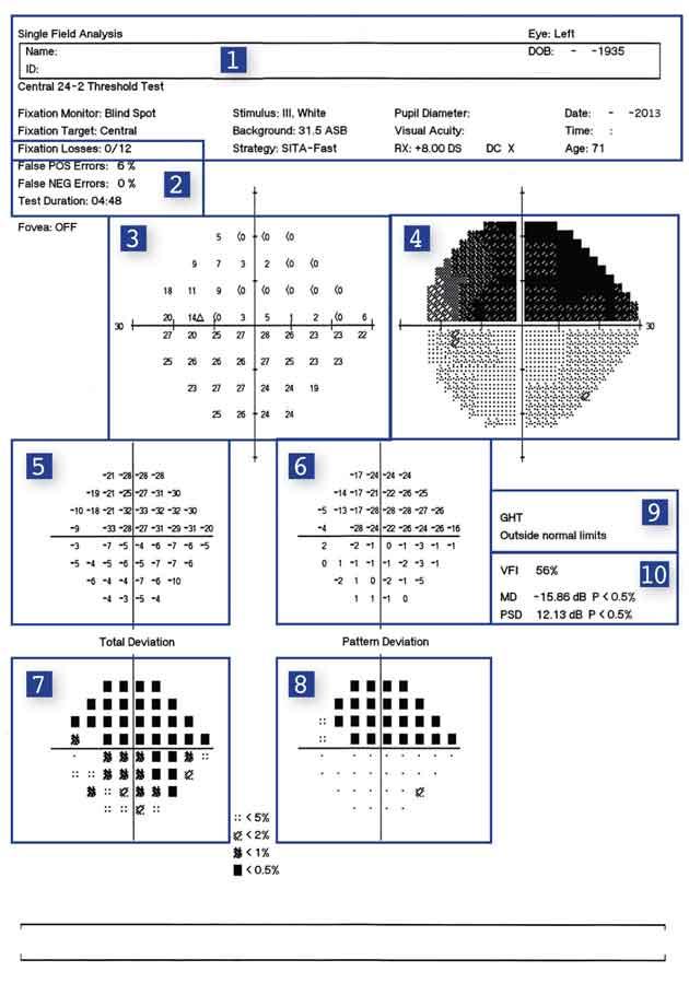 test ocular 24