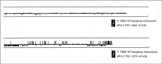 Figure 9: Printout of the results of the gaze tracker from a patient with 'good' fixation (Top) and from a patient exhibiting major difficulties in sustaining fixation (Bottom)