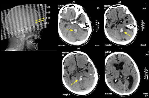 Systemic disease in practice: Pontine haemorrhage and diplopia ...