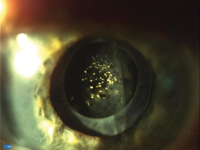 - Optician