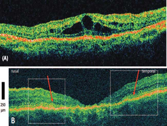 retinitis pigmentosa essay First patient treated in xlrp gene therapy clinical trial to be treated in a gene therapy clinical trial for x-linked retinitis pigmentosa essay writer says.