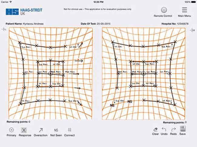 Haag-Streit UK launches Hess Test app - Optician