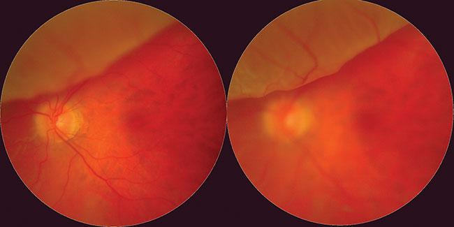 Consequences of myopia include retinal detachment