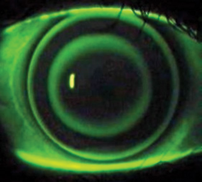 Orthokeratology is one method that has shown some impact on  myopic progression