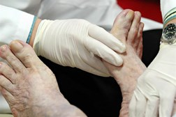 Foot checks are one of the nine care processes
