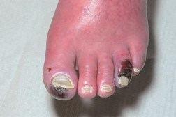 A presentation of distal gangrene