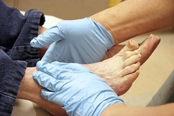 Foot complications that can arise from diabetes ra