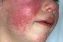 Scarlet fever can be recognised through a red rash