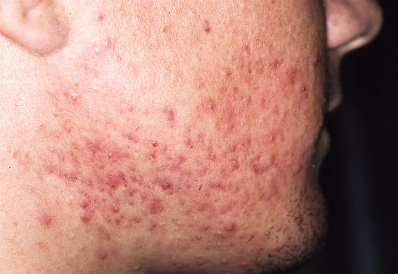 Moderate to severe acne