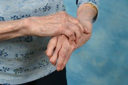 Arthritis needs to be treated in a timely manner