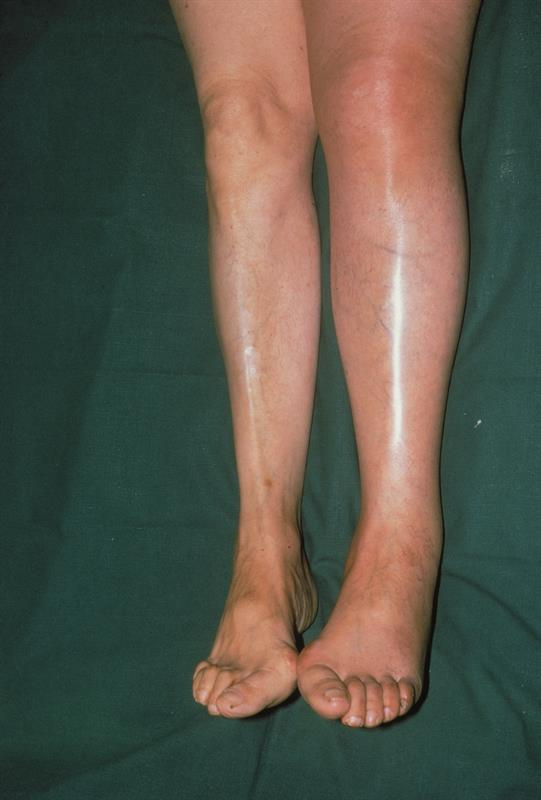Differentiating Between Red Legs And Cellulitis