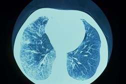 In this CT scan of IPF, the white areas in each lu