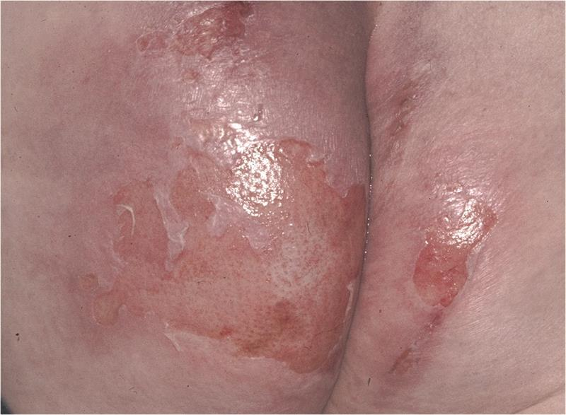 New insights on incontinence-associated dermatitis