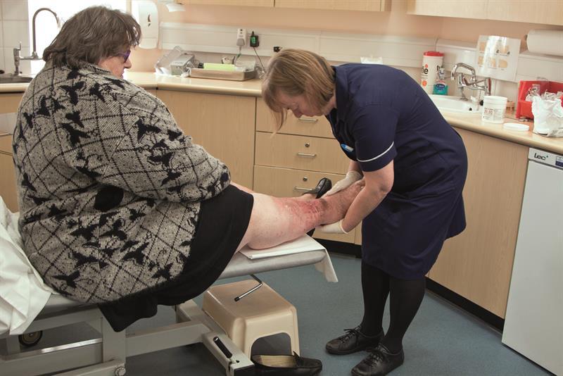 Managing lipoedema in a primary care setting