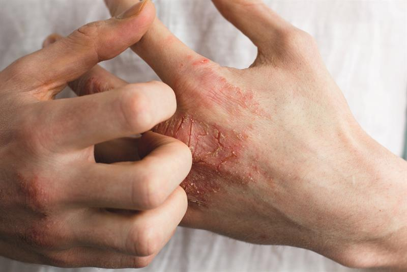 Understanding hand eczema: features, diagnosis and treatment