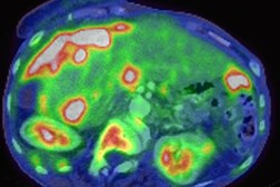 A CT scan of a metastatic ovarian carcinoma