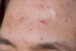 The emergence of acne is generally hormonal