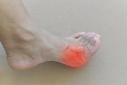 Gout occurs when excess uric acid accumulates