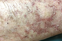 Patients with eczema typically present