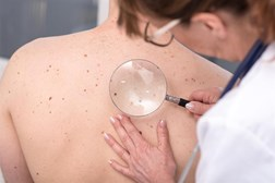 Melanoma has doubled in incidence since the 1990s