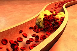 Reducing cholesterol can prevent heart attacks