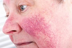 Rosacea is a common dermatological condition