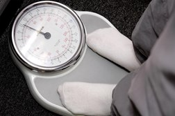 Reducing weight can reduce psoriasis